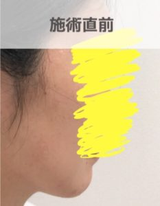 顎ボトックス施術前
