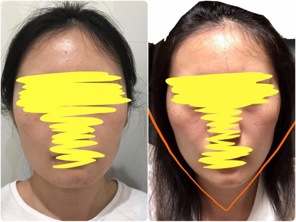 顎ヒアルロン酸ビフォーアフター